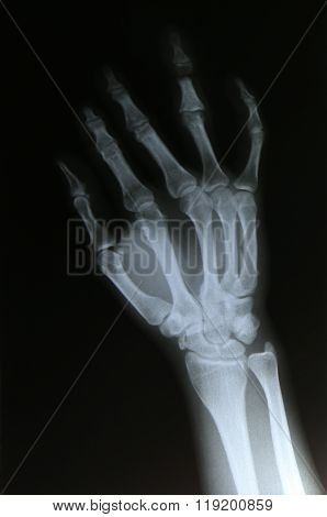 X-rays images of  bone