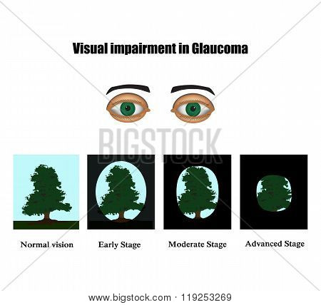 Glaucoma. The field of vision in glaucoma.  Infographics. Vector illustration on isolated background