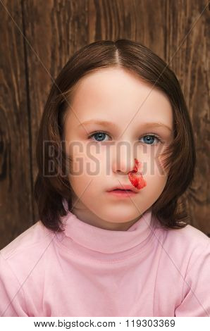 Girl With Bleeding From The Nose
