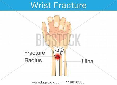 Diagram of wrist have bone fracture
