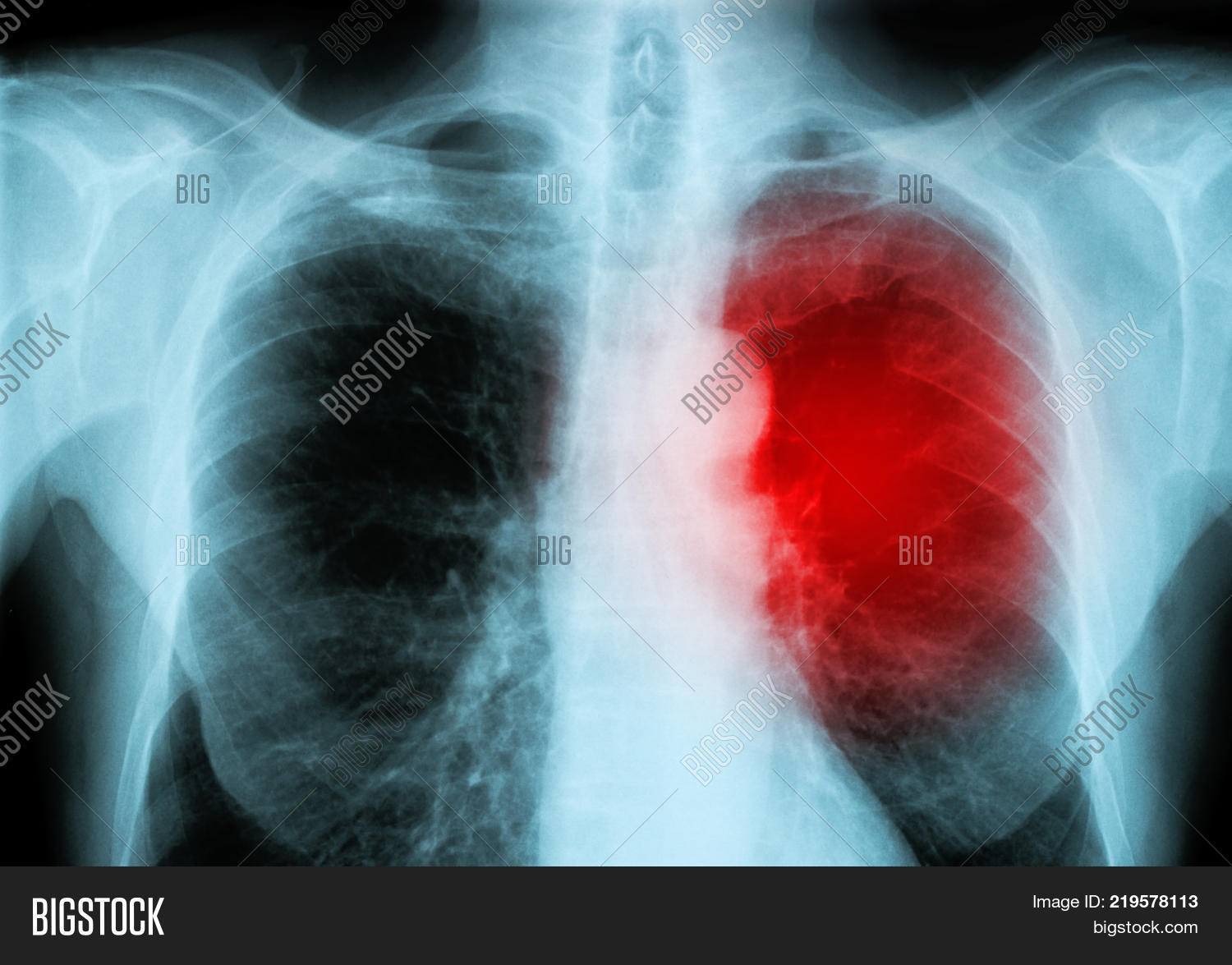 Red Heart Human X Ray Image Photo Free Trial Bigstock