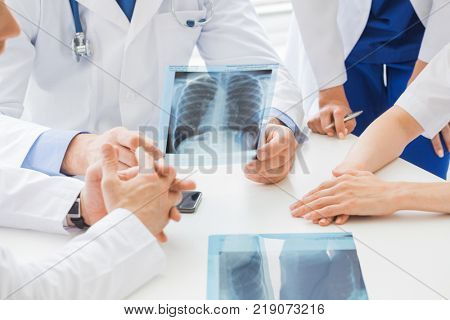 Group of doctors look and discuss x-ray in a clinic or hospital