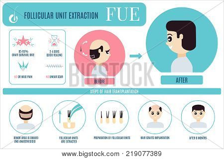 Male hair loss FUE medical treatment infographic. Stages and benefits of follicular unit extraction procedure for men. Alopecia vector template for transplantation clinics and diagnostic centers.