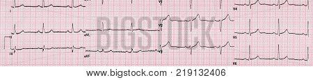 Curved Electrocardiogram Line