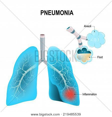 Pneumonia. Normal and inflammatory condition of the lung and inflamed alveoli with fluid.