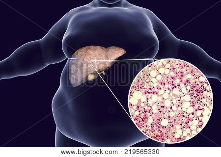 Obese man with fatty liver, 3D illustration and photomicrograph of liver steatosis. Conceptual image for non-alcoholic fatty liver disease