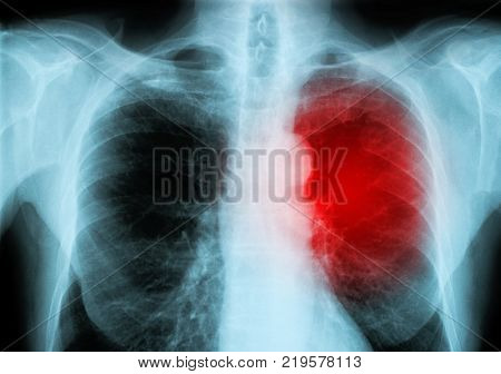 red heart of a human X-ray image from a human body part for medical disease diagnosis. ideal for websites and magazines layouts