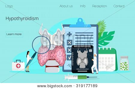 Hypothyroidism Concept Vector. Endocrinologists Diagnose And Treat Human Thyroid Gland. Specialists
