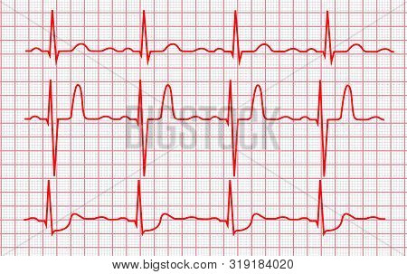 Cardiogram Or Pulse Line On A Pink Grid Cardio Pulsating Trace Set. Vector Illustration Of Electroca