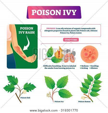 Poison Ivy Vector Illustration. Educational Dangerous Urushoil Plant Scheme With Symptoms And Descri