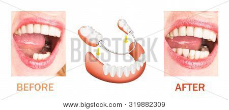 Dental Rehabilitation With Lower Flexible Nylon Denture, Before And After Treatment. Removable Dentu