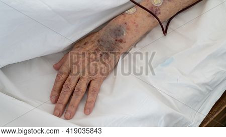 Ankara, Turkey - March 2021: Arm Of An Old Person With Bruises Receiving Blood Transfusion Serum In