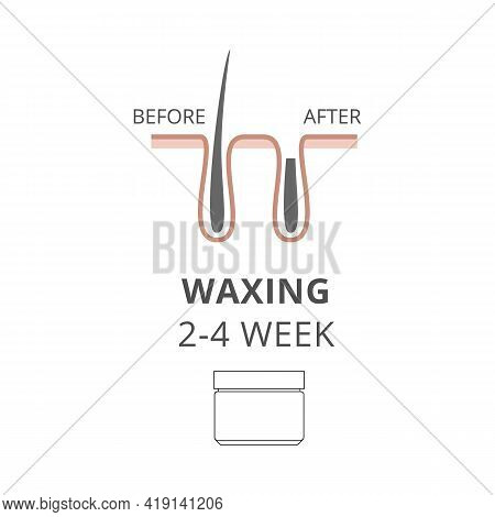 Hair Removal Wax, Depilation Epilation Before And After A Vector Illustration.