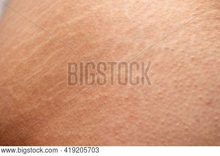 Skin With Stretch Marks. Stretch Marks Of Butt Skin. Female Buttocks With Stretching Marks.