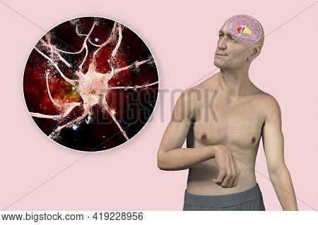 Dorsal Striatum, Caudate Nucleus And Putamen, Highlighted In The Brain Of A Person With Chorea Disea