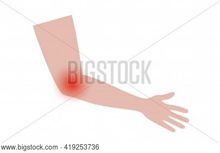 Pain In Human Arm. Tennis Or Golfer Elbow Concept. Lateral Or Medial Epicondylitis. Trauma Or Inflam
