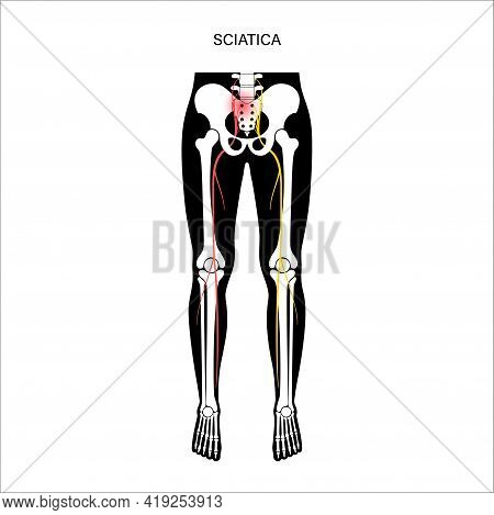 Sciatica Pain And Inflammation In Pelvis, Leg And Hip. Piriformis Muscle Syndrome Concept. Human Ner