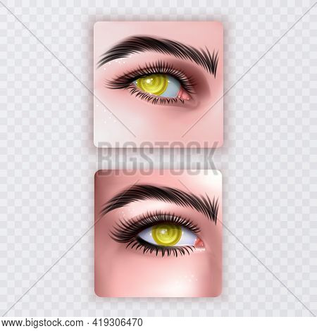Illustration Of Realistic Human Eye Of A Girl With Spiral Hypnotic Iris Of Yellow Color
