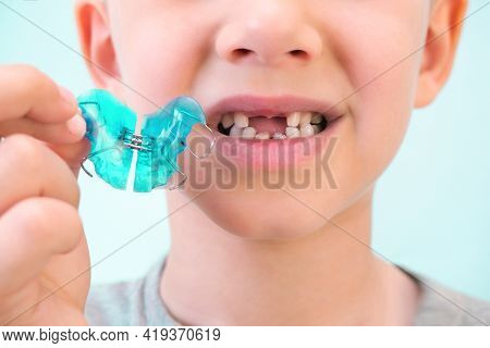 Dental Plate. Expansion Of The Jaw In A Child. A Plate To Heaven. There Is Not Enough Room For The M