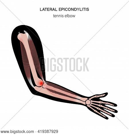 Pain In Human Arm. Lateral Epicondylitis Tennis Elbow. Trauma Or Inflammation In Hand. Muscular Syst