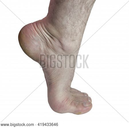 Male Foot, Standing On Tip Toe, With The Heel Raised, Isolated On White Background