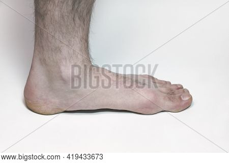 Man Feet On White Background, Hairy Leg European, With Clipping Path For Isolating