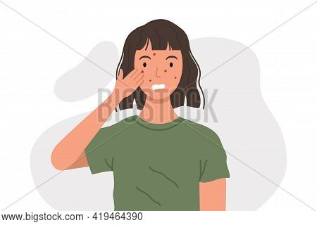Woman With Acne Or Allergy Pimples Touches Her Face. Young Girl With Skin Problems. Skincare And Der