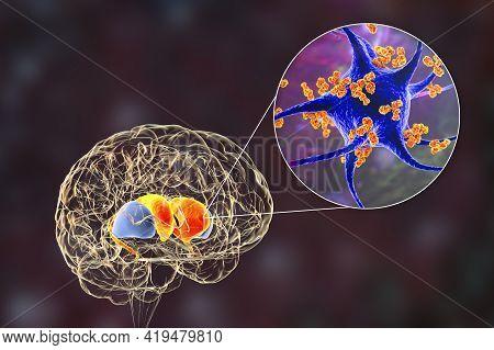 Anti-neuronal Antibodies, Anti-basal Ganglia Antibodies. 3d Illustration Shows Immunoglobulins Attac