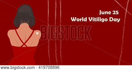 June 25 - World Vitiligo Day. Pigmentation Disorders. Skin Depigmentation. Vector Illustration On Th