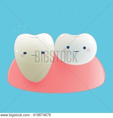 Illustration Gingival Recession. Dental Concept. On A Blue Background