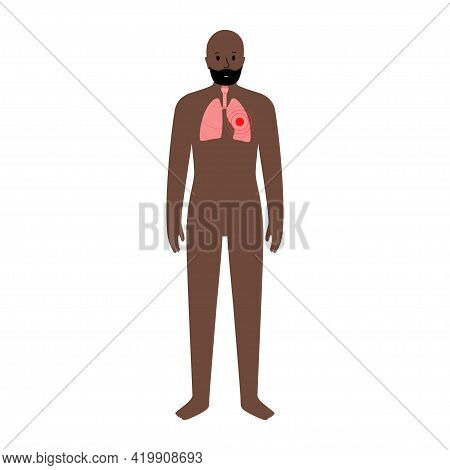 Cancer Or Lungs Disease. Pneumonia, Tuberculosis, Asthma Concept. Inflammation In Respiratory System