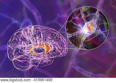 Destruction Of Neurons Of The Caudate Nucleus, Conceptual 3d Illustration. Caudate Nucleus Belongs T