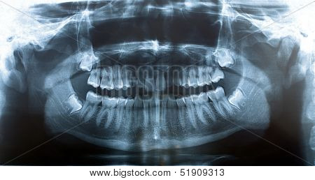 Picture X-ray Jaw