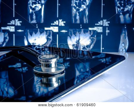 Medical Stethoscope On Modern Digital Tablet In Laboratory On X-ray Images Background
