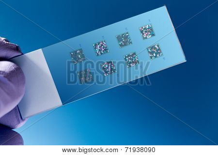 DNA microarray, DNA chip or biochip,  array of nano DNA spots attached to a glass surface to measure  levels of large numbers of genes