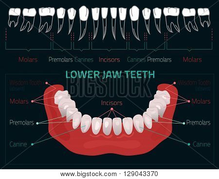 Human teeth dental infographic. Editable illustration with Lower jaw teeth. Medical image with white teeth in modern style on a dark background useful for poster, leaflet or brochure graphic design.