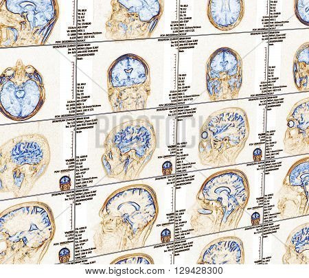 Magnetic resonance imaging of the brain with no visible abnormalities. MRI in different views
