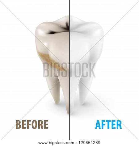 Teeth Whitening Icon Dentist Symbol in Isometric Style on White
