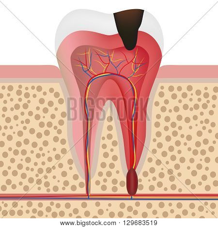 Vector illustration showing infected tooth with pulpitis.