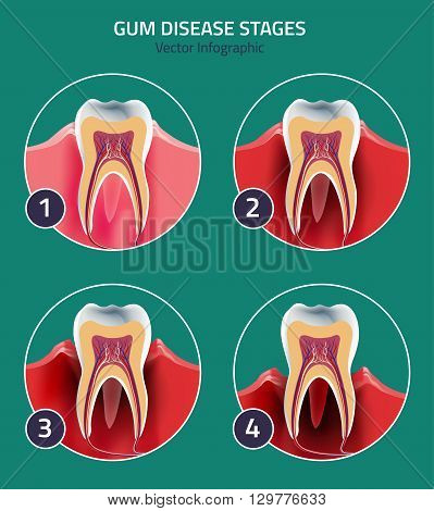 Gum disease stages. Editable vector illustration in modern style. Medical concept in natural colors on a light green background. Keep your teeth healthy