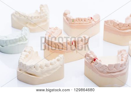 Teeth molds on a bright white surface
