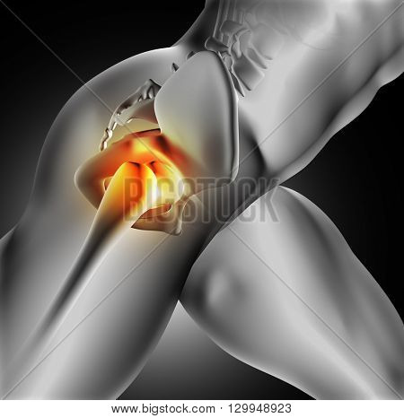 3D render of a medical image of close up of hip bone joint