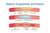 Balloon agioplasty and stents procedure for heart disease treatment. This illustration about medical. poster