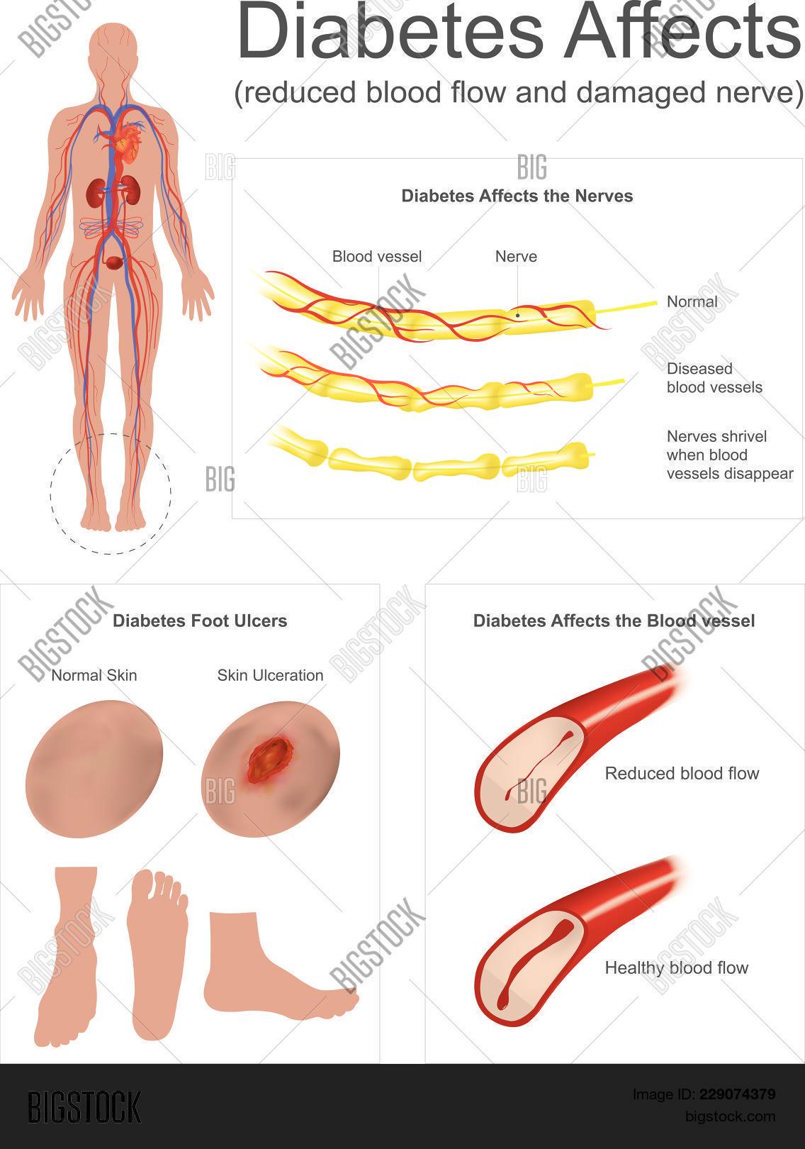 Nerves Leg Shrivel Vector Photo Free Trial Bigstock