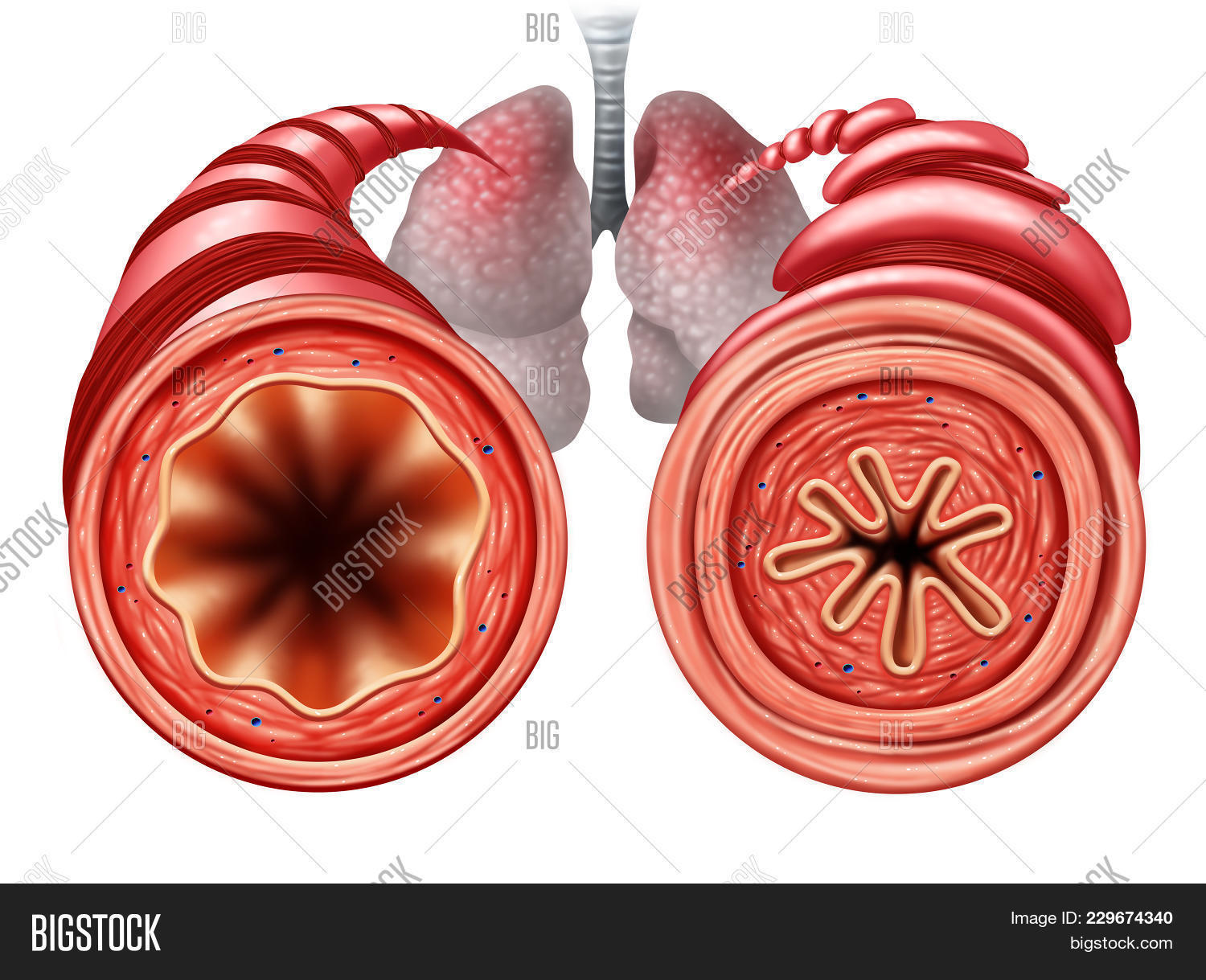 Asthma Diagram Healthy Image & Photo (Free Trial) | Bigstock