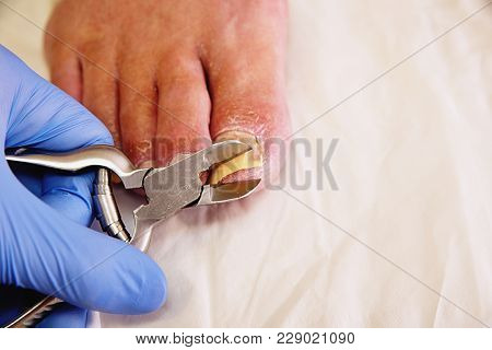 Close-up Of A Manicurist With Pedicure Pliers Trimming Old Person Toenail. Pedicurist With Nail Clip