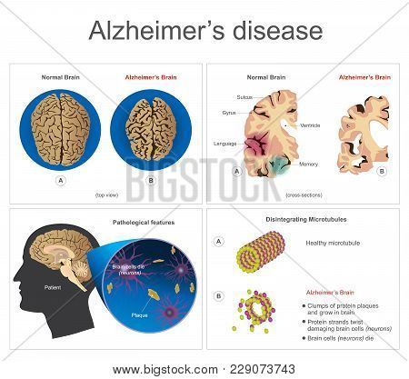 Brain Cells Die, Neuron Diseased, Certain Areas Of Brain Shrink Memory Loss Or Changes In Memory For