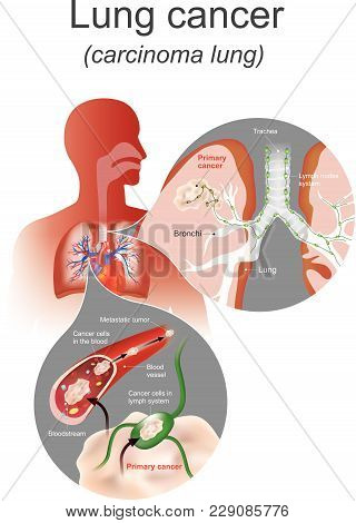 The Lung Cancer Is A Malignant Lung Tumor Characterized By Uncontrolled Cell Growth In Tissues Of Th