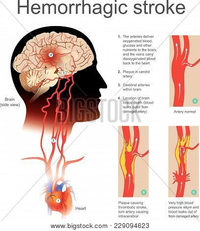 Plaque Causing Thrombotic Stroke Torn Artery Causing Intracerebral. Very High Blood Return And Blood