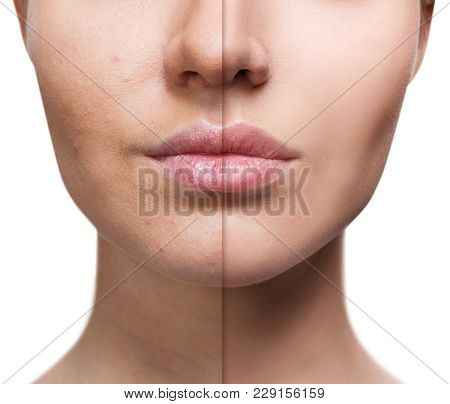 Perfect Natural Lips Of Young Woman Before And After Retouch.